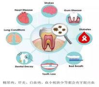 牙病会致癌!有这些症状的人,一定要小心